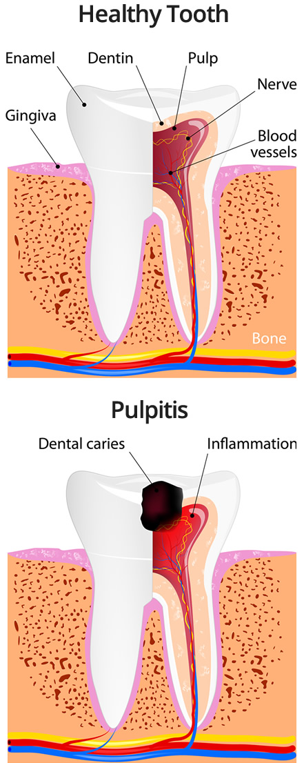Illustration of a healthy tooth versus one that has Pulpitis