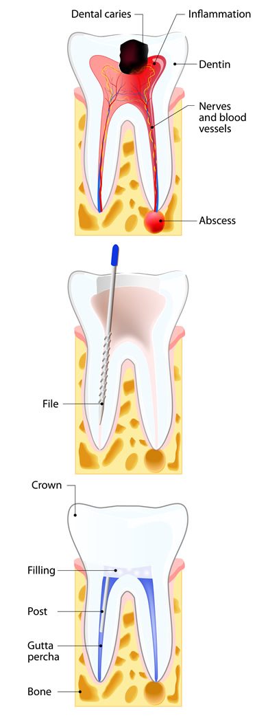 Illustration of the Root Canal process