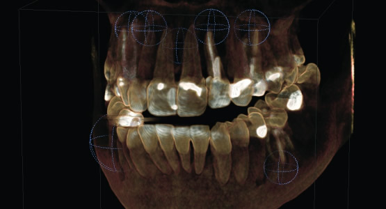 An example of a 3D image by Sirona technology